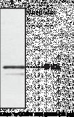 Chemokine-<wbr/>Like Receptor 1 Polyclonal Antibody