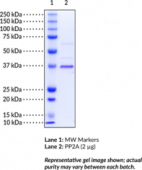 Protein Phosphatase 2A C subunit (human recombinant; L309 deletion)