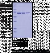 PAD4 (human, recombinant)