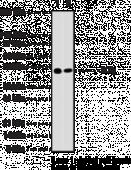 IKKγ Monoclonal Antibody (Clone 72C627)