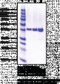 Annexin A1 (human recombinant)