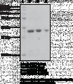 SIRT2 (human recombinant)