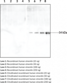 Citrullinated Vimentin Monoclonal Antibody (Clone 12G11)