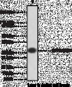 I2PP2A/SET Polyclonal Antibody