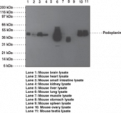 Podoplanin Monoclonal Antibody (Clone pmab-<wbr/>1)