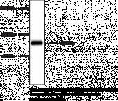 Tyrosine Hydroxylase (rat, denatured) Polyclonal Antibody