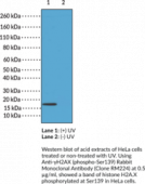Anti-γH2AX (phospho-Ser139) Rabbit Monoclonal Antibody (Clone RM224)