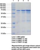 PRMT1 (human recombinant)