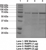 RbBP5 (human recombinant)