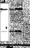 Lyso<wbr/>phospholipase D Polyclonal Antibody