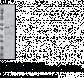 Renin Monoclonal Antibody (Clone 3G10)