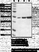 HDAC8 (human recombinant)