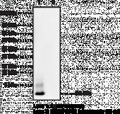 Amyloid-<wbr/>β Monoclonal Antibody (Clone 6C3, MOAB-<wbr/>2)