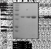 TP53BP1 tudor-<wbr/>like region (human recombinant)