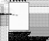 Vimentin Monoclonal Antibody (Clone 12E4)