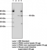 IP6K2 Monoclonal Antibody (Clone 4F10)