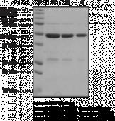 BRCA1 BRCT domains (human recombinant)