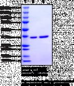 Protein Tyrosine Phosphatase 1B (human recombinant)