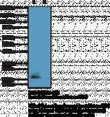 Histone H3K9Me2/K14Ac Monoclonal Antibody