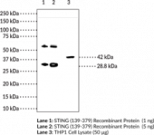 STING Monoclonal Antibody (Clone 2C8)