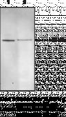 Soluble Epoxide Hydrolase Polyclonal Antibody