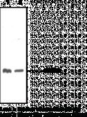11β-Hydroxy<wbr/>steroid Dehydrogenase (Type 1) Polyclonal Antibody