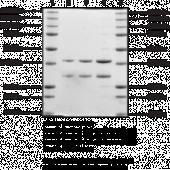 Succinyl-CoA synthetase