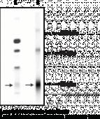 GABA<sub>A</sub> Receptor δ <wbr/>subunit (N-<wbr/>Term) Polyclonal Antibody