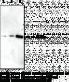 IGFBP5 Polyclonal Antibody