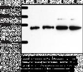 Serine Palmitoyl<wbr/>transferase Polyclonal Antibody