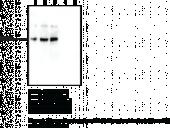PAD3 Monoclonal Antibody (Clone 4E5)