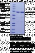 Citrullinated Hsp70 (human recombinant)