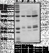BARD1 BRCT domains (human recombinant)