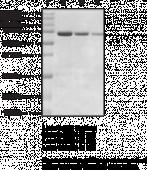 PAD1 (human, recombinant)