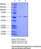 Vimentin (human, recombinant)