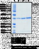 Monoacyl<wbr/>glycerol Lipase (human, recombinant)
