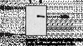 IκBα (Phospho-<wbr/>Ser<sup>32/36</sup>) Monoclonal Antibody (Clone 39A1413)