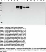15-<wbr/>Lipoxygenase-<wbr/>2 Polyclonal Antibody