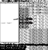 LPA<sub>1</sub> Polyclonal Antibody