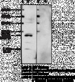 LL-<wbr/>37 Polyclonal Antibody