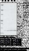 sPLA<sub>2</sub> (human, recombinant Type V)