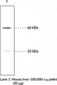 PINK1 Polyclonal Antibody