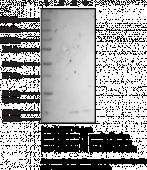 Citrullinated Histone H3 (human, recombinant)