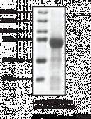 HDAC4 (human, recombinant)