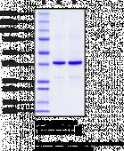 YTHDF2 (human recombinant)