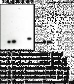 FABP2 Polyclonal Antibody