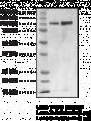 Autotaxin (human, recombinant)