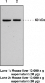 Soluble Epoxide Hydrolase (FL) Polyclonal Antibody