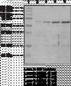 ASH2L (human recombinant)