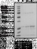 O<sup>6</sup>-<wbr/>methylguanine-<wbr/>DNA Methyl<wbr>transferase (human recombinant)